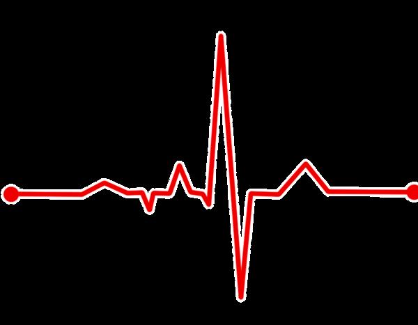 منحنی الکتروکاردیوگرافی