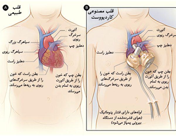 مکانیزم قلب مصنوعی